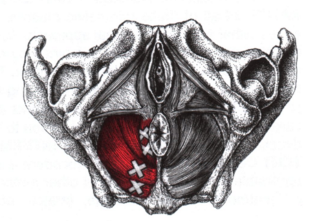 Coccyx pain ECSW