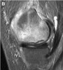 knee edema